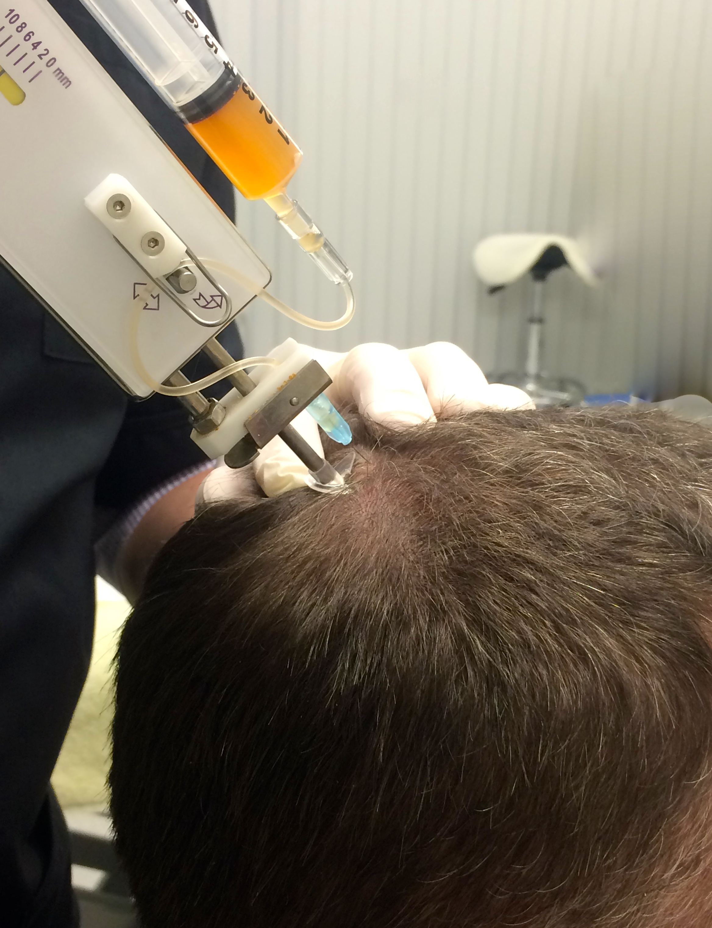 Is PRP an effective hair loss treatment?